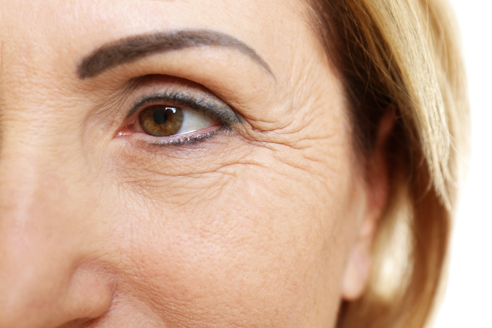 Let's Know The Anti Aging Tips To Keep Your Eye Wrinkles At Bay