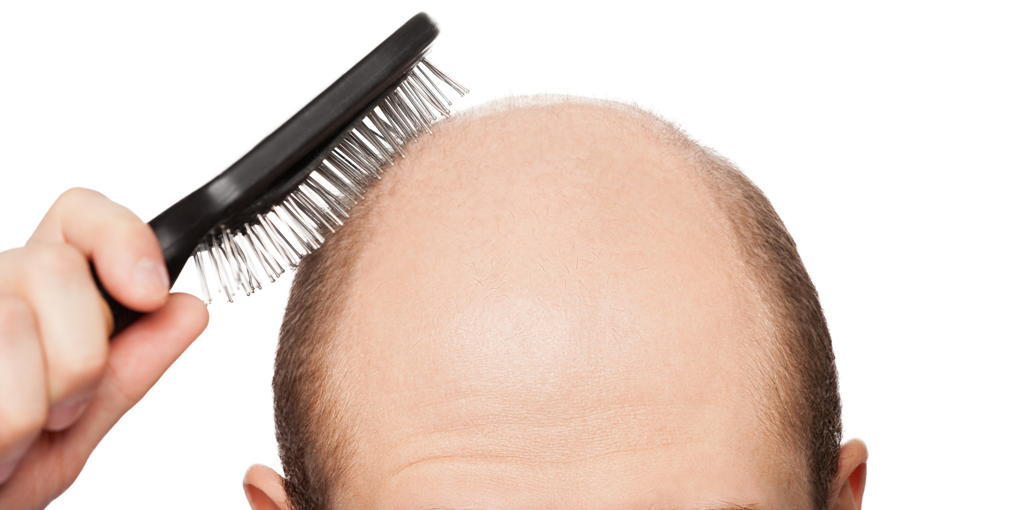 The Real Cause Of Your Hair Loss